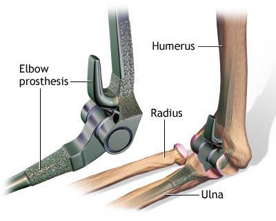 tratament după pomparea lichidului în articulația genunchiului tratamentul artritei artrozei articulației șoldului