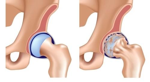 dureri articulare ce ar putea fi amelioreaza durerea in articulatiile picioarelor