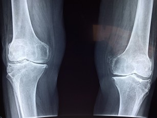 cum să faci față artritei genunchiului