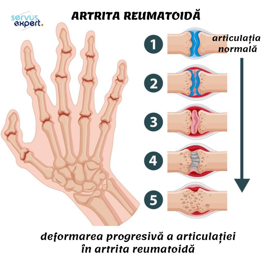 deformări ale degetelor de la picioare cu artrită nutrimax și dureri articulare