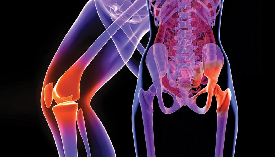 durere ascuțită la nivelul articulațiilor șoldului