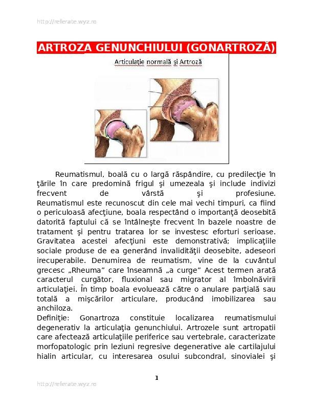 artroza 1 articulației metatarsiene
