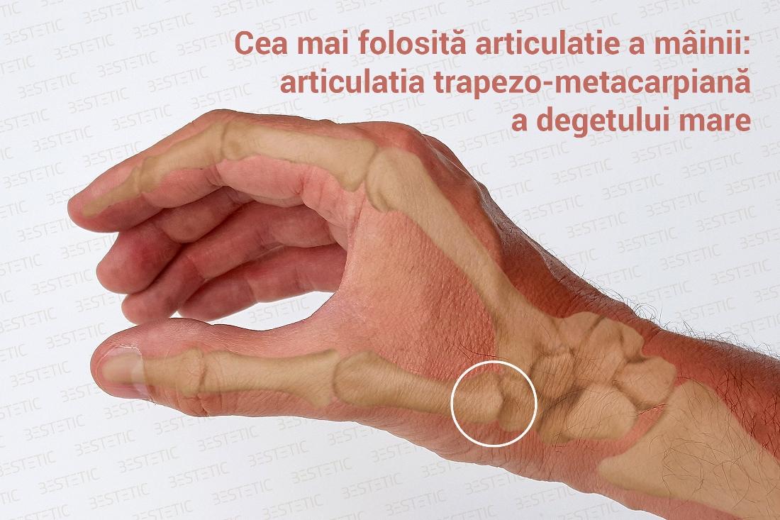Artrita de la A la Z : Tipuri, complicatii, diagnostic, tratament
