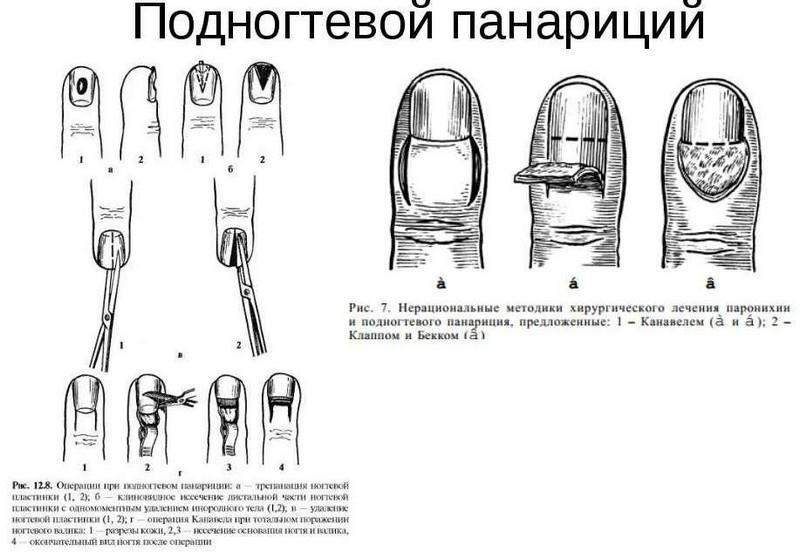 inflamație purulentă a articulației degetului mare glucozamină condroitină don