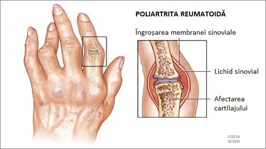 poliartrita reumatoida la barbati)