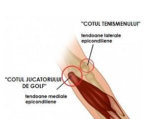 tratamentul rupturii tendoanelor articulației cotului