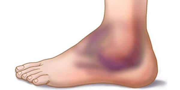tratament comun în hunchun artroza articulației spar