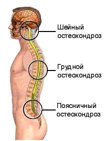remedii pentru osteochondroza coloanei vertebrale cervicale dacă îți doare articulațiile șoldului