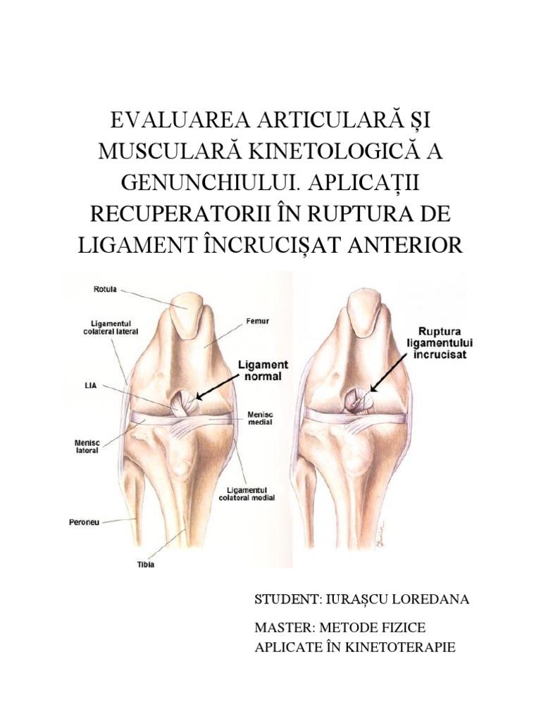 mijloace de evaluare pentru articulații și ligamente