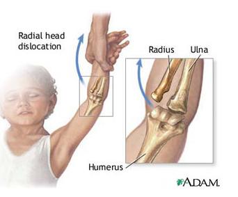 amorțită durere braț stâng în articulația cotului