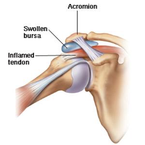 eftederm cremă articulară introducerea tratamentului cu artroză în articulație