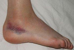 medicament pentru ungerea genunchiului preparate pentru articulația gleznei