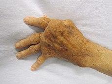cum să tratezi o articulație a genunchiului