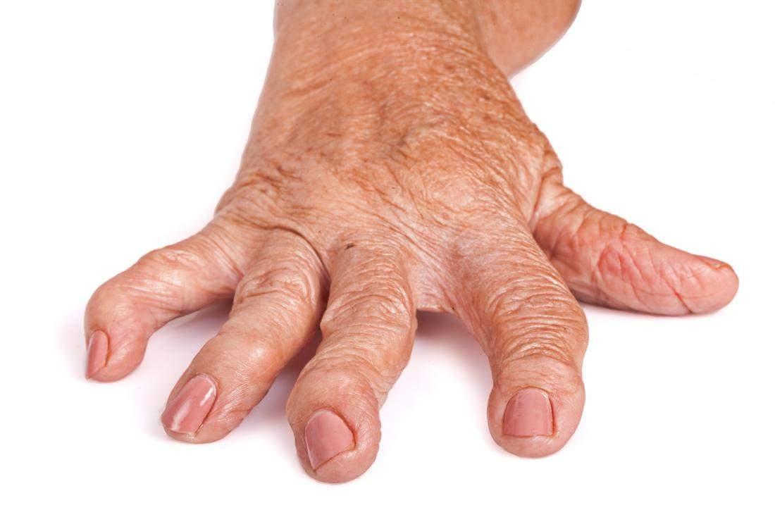 artrita reumatoida infectioasa bandajează articulația pentru artrită