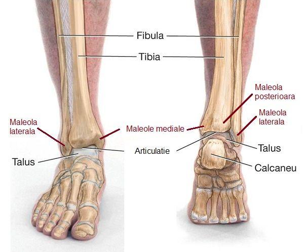 umflarea articulației după fracturarea călcâiului