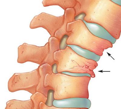 ce inseamna artroza la coloana