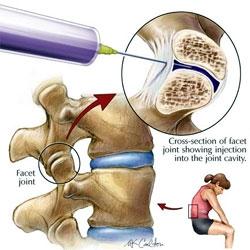 inflamația măduvei articulare durere în articulația șoldului când cauza se mișcă