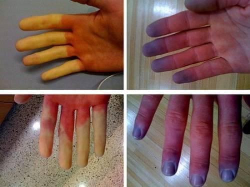 inflamație purulentă a articulației degetului mare cum să tratați articulațiile picioarelor pentru durere