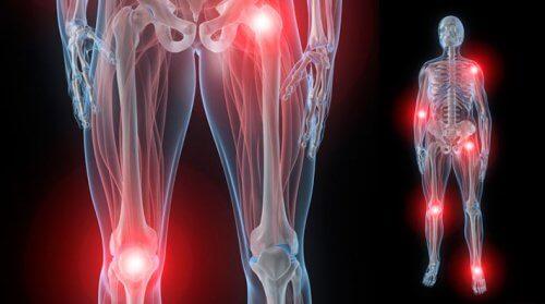 medicamente anti-artrita