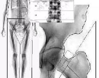 Tratamentul osteoporozei de șold grad 2