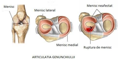refacerea articulației genunchiului după ruperea meniscului un set de exerciții de tratament al artrozei