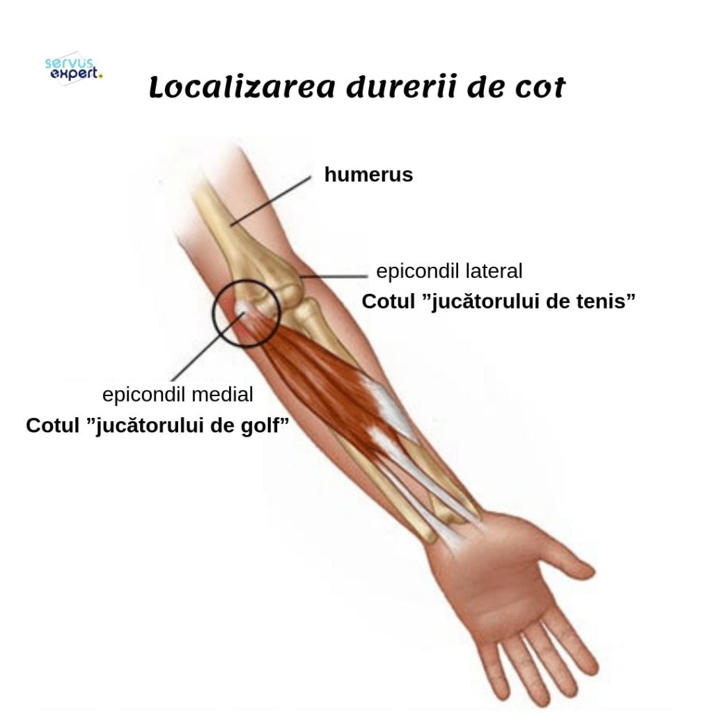 Artralgie la cot