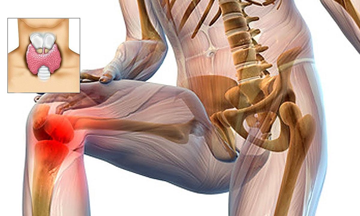 de ce doare o articulație protetică de șold cum poate fi tratată artroza piciorului