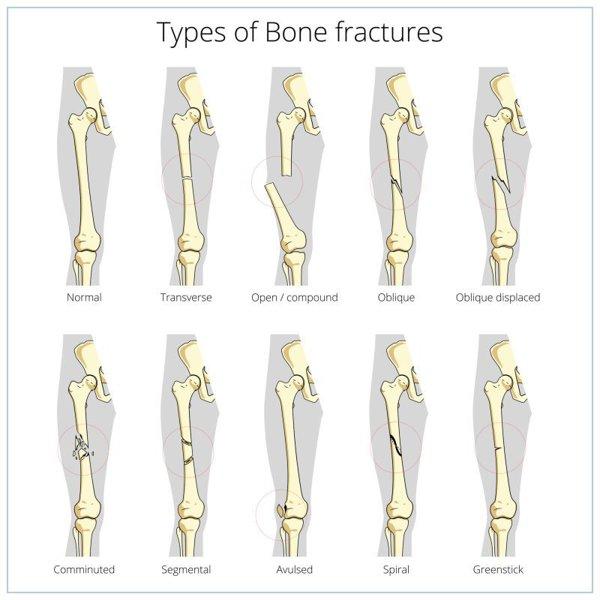 cele mai bune medicamente pentru osteochondroza lombară
