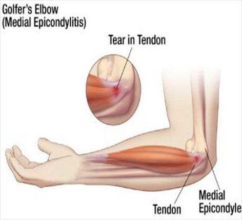 tratamentul tendoanelor cotului artrita si osteoartroza genunchiului