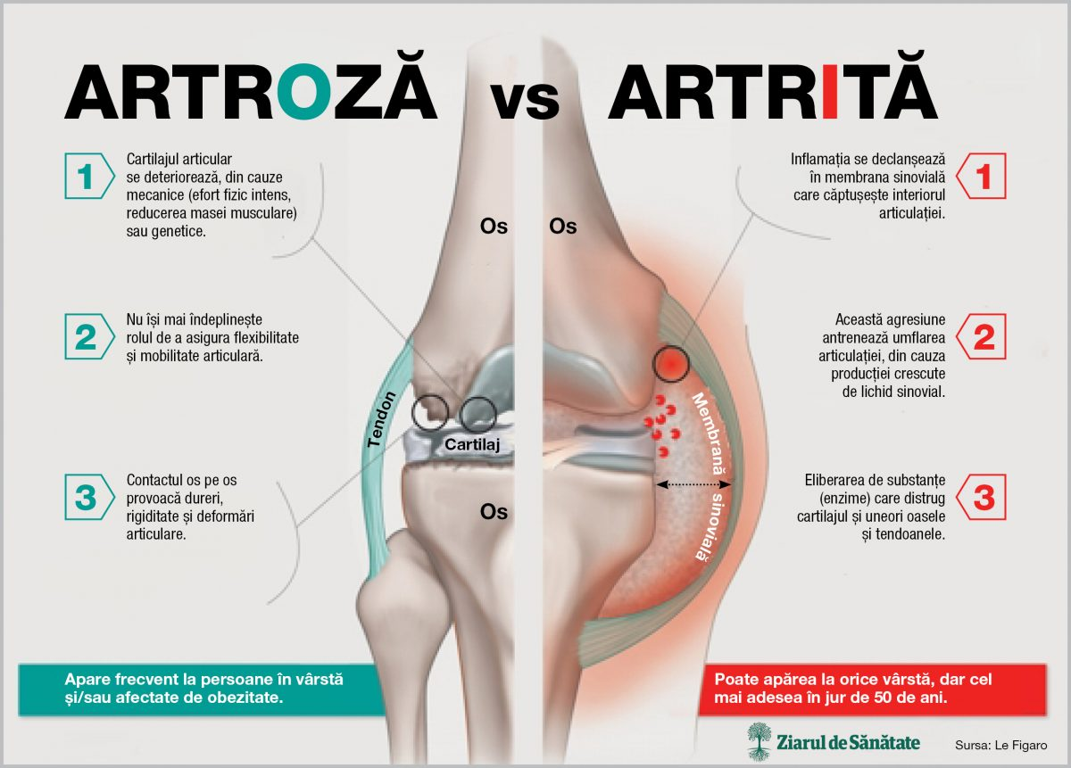 artrita urika cauze