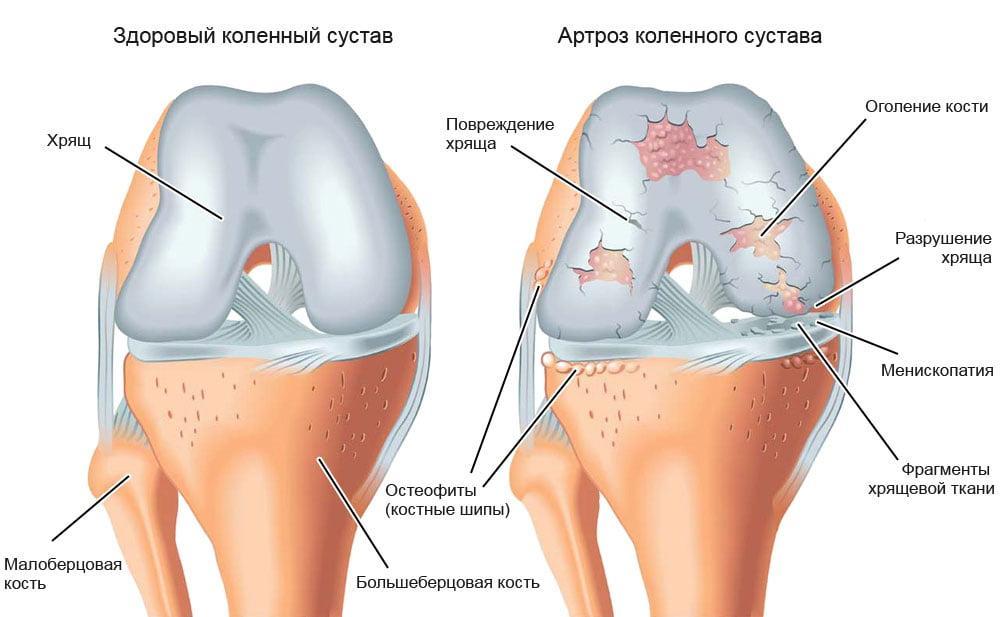 двусторонний гонартроз I степени при лечении коленного сустава cele mai bune unguente pentru articulațiile umărului