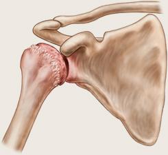 unguent pentru artroza articulațiilor picioarelor