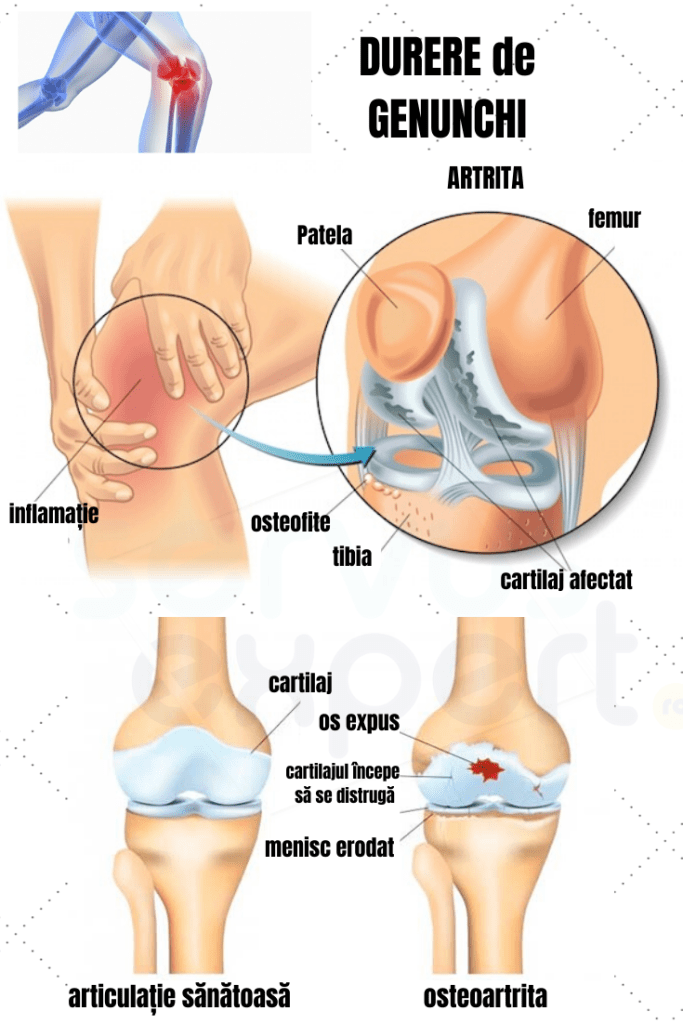 articulațiile și brațele umflate și dureroase