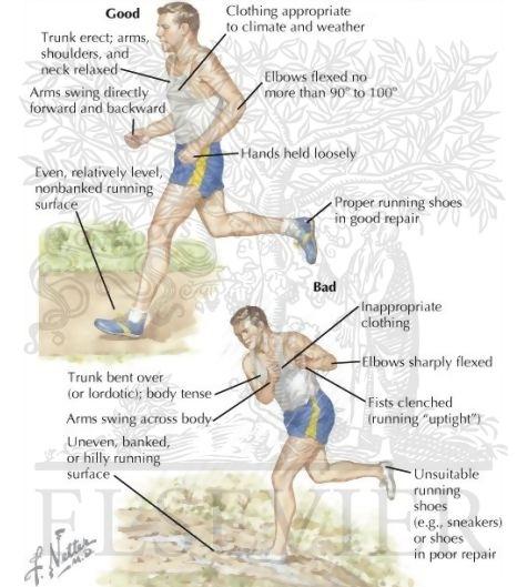 genunchii răniți după alergare