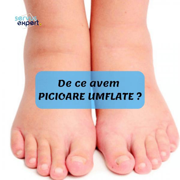 cauze picioare umflate deformarea tratamentului cu medicamente pentru artroză