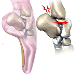 afectarea osteochondrală a articulației gleznei