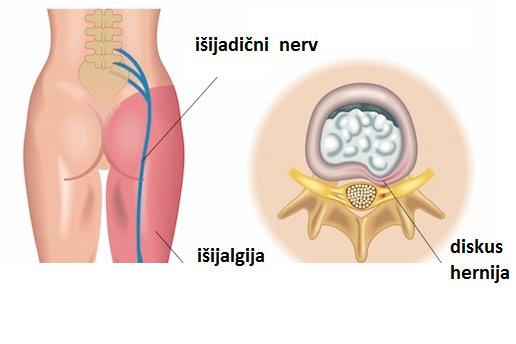 medicamente pentru artroză la genunchi
