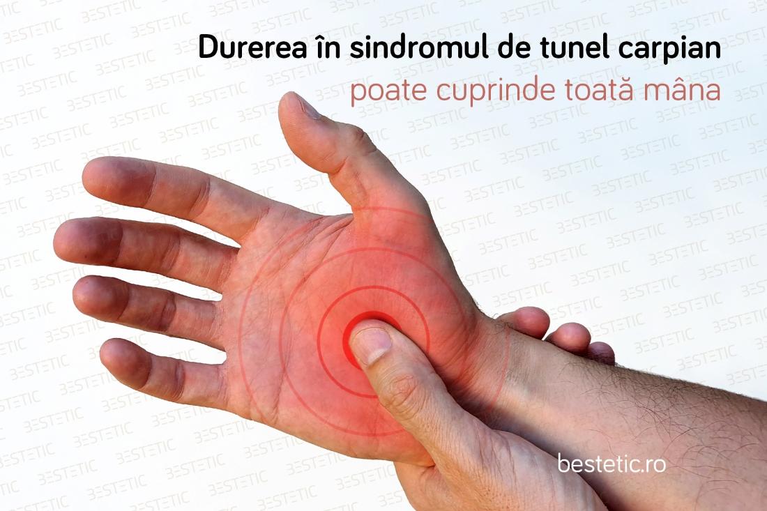 metoda de tratare a fisurilor articulare tipuri de artroză și tratamentul acestora