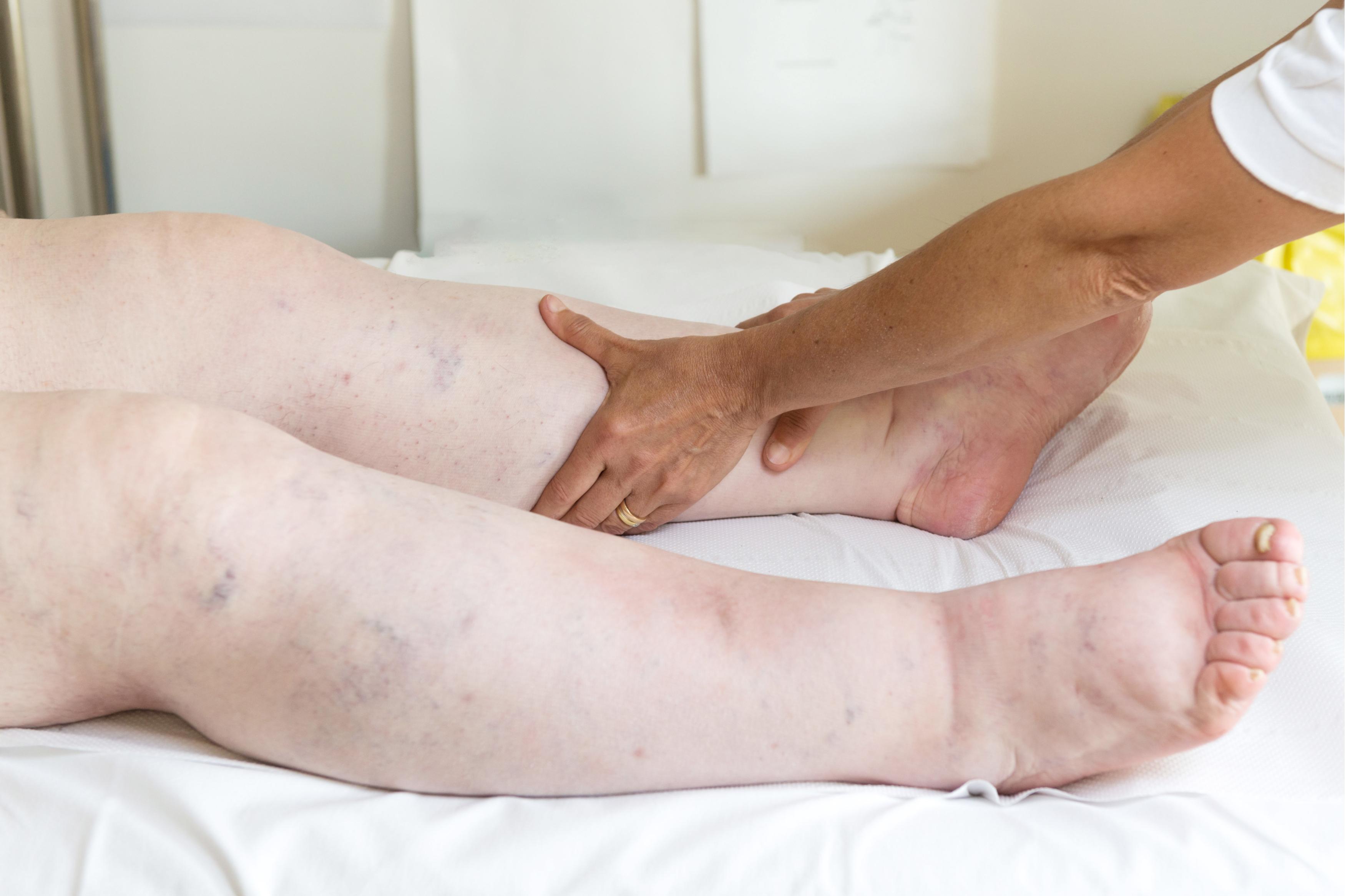 cauze picioare umflate clemă nervoasă în tratamentul articulației umărului