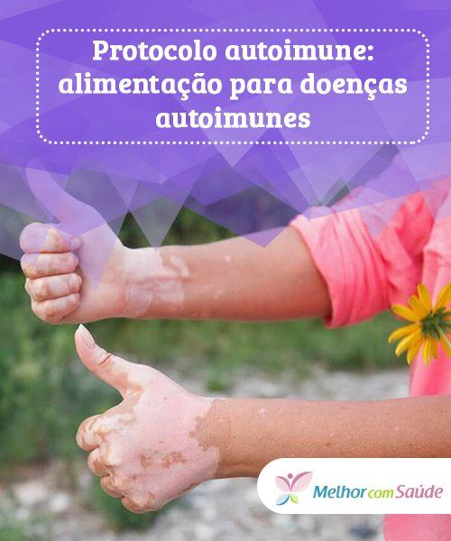 ce este mai bine pentru artroza articulațiilor medicamente pentru dureri articulare în interior