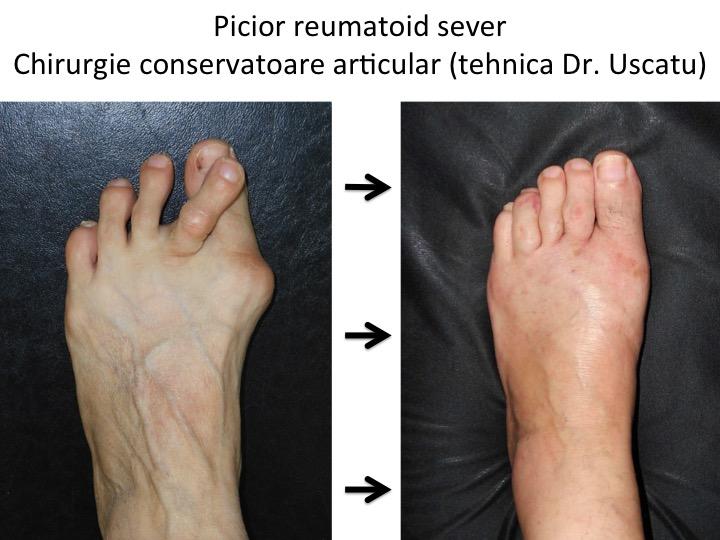 articulația piciorului este foarte dureroasă