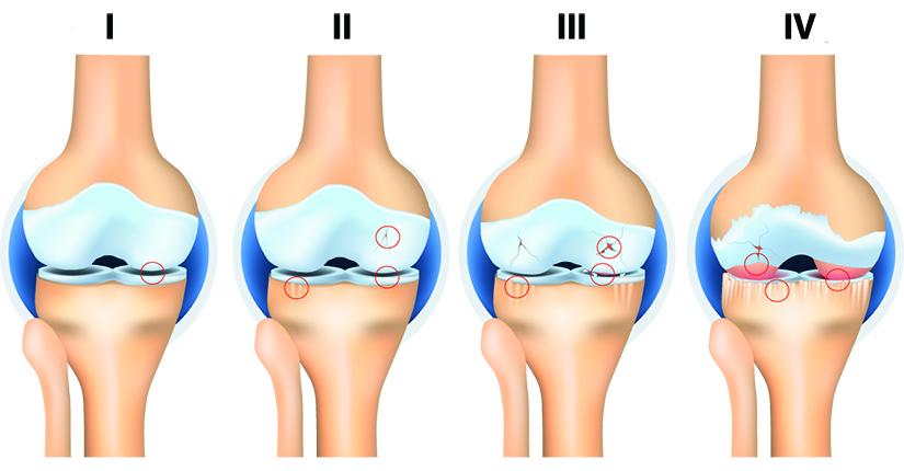 artroza artrita genunchiului 2 grade inflamație sau fractură articulară