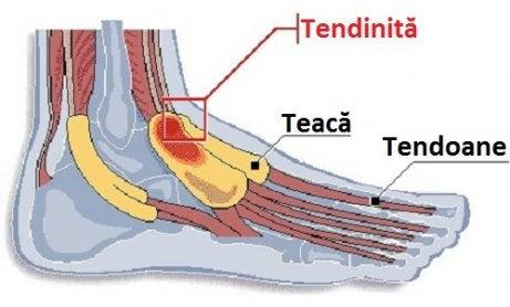 inflamația articulară claviculară a tendoanelor tratamentului periostic unguente pentru osteoartrita genunchiului