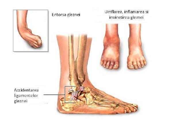 umflarea pe articulația gleznei unguente de top pentru dureri articulare
