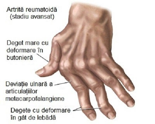 articulatia mainii inflamata)