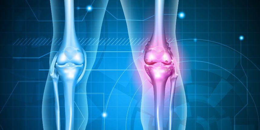 artroza progresivă a genunchiului tratamentul bolilor musculare articulare