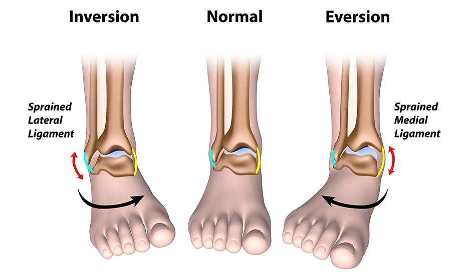 tratamentul rupturii ligamentelor gleznei