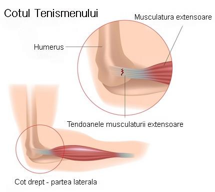 de ce doare articulația cotului mâinii stângi