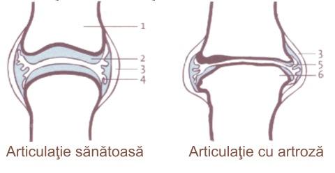 agenți condroprotectori pentru osteochondroză dureri articulare cum se tratează artroza
