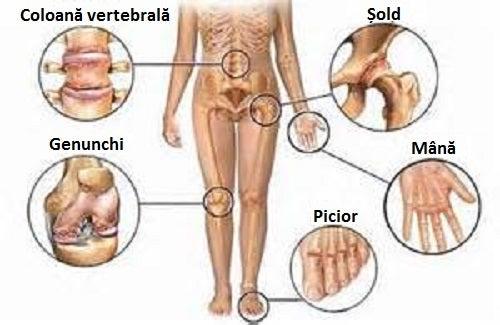 cu activitate fizică  durere în articulația umărului